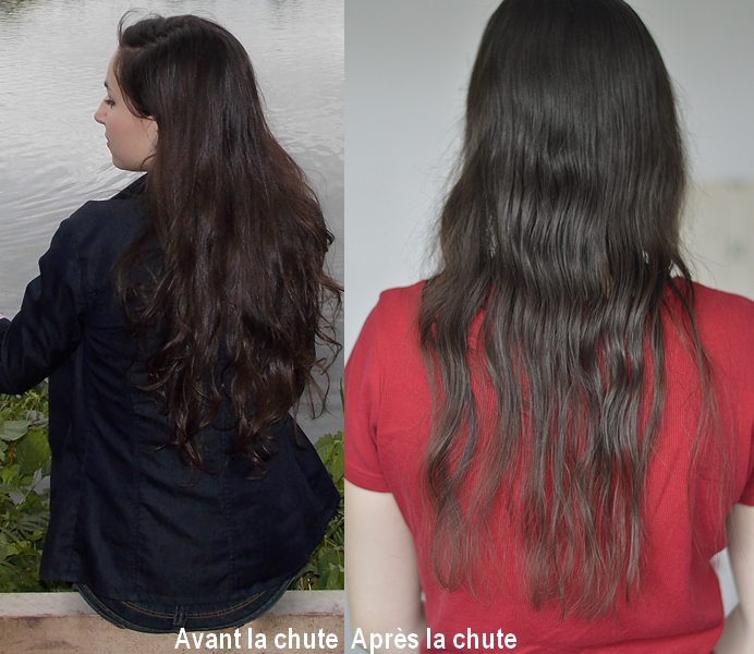 before after alopécie